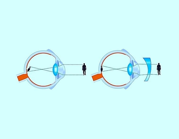 Astigmatismo - Difetto visivo