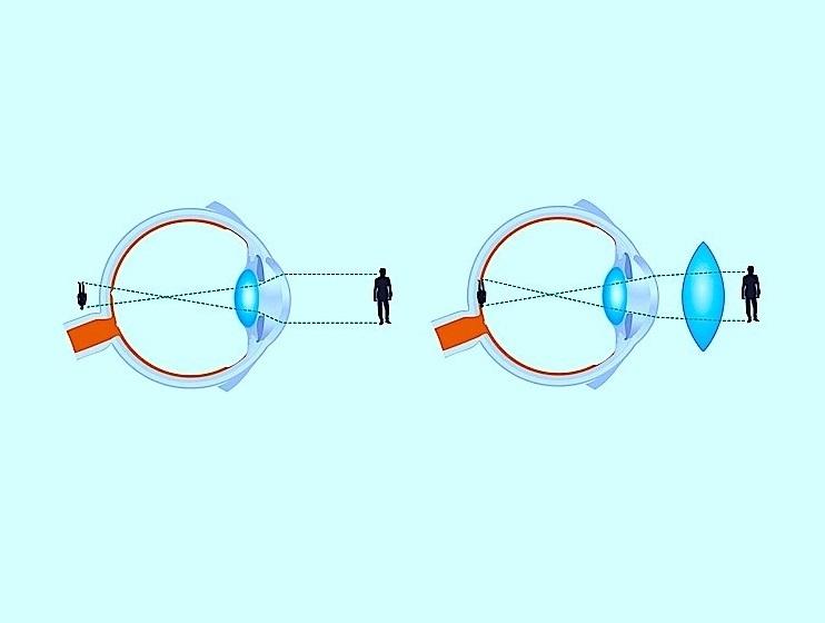 Ipermetropia - Difetto visivo
