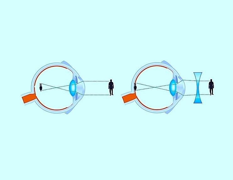 Miopia - Difetto visivo