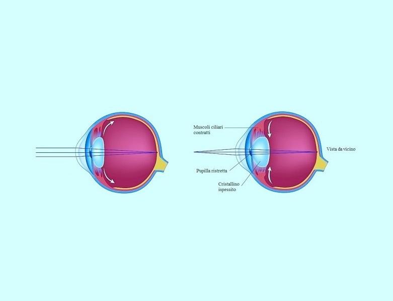 Presbiopia - Difetto visivo